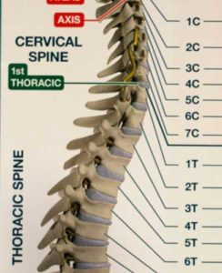 Spine for chiropractic using instrument adjusting